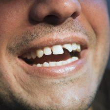 drømmetydning tænder drømme om tænder drøm tabe tænder